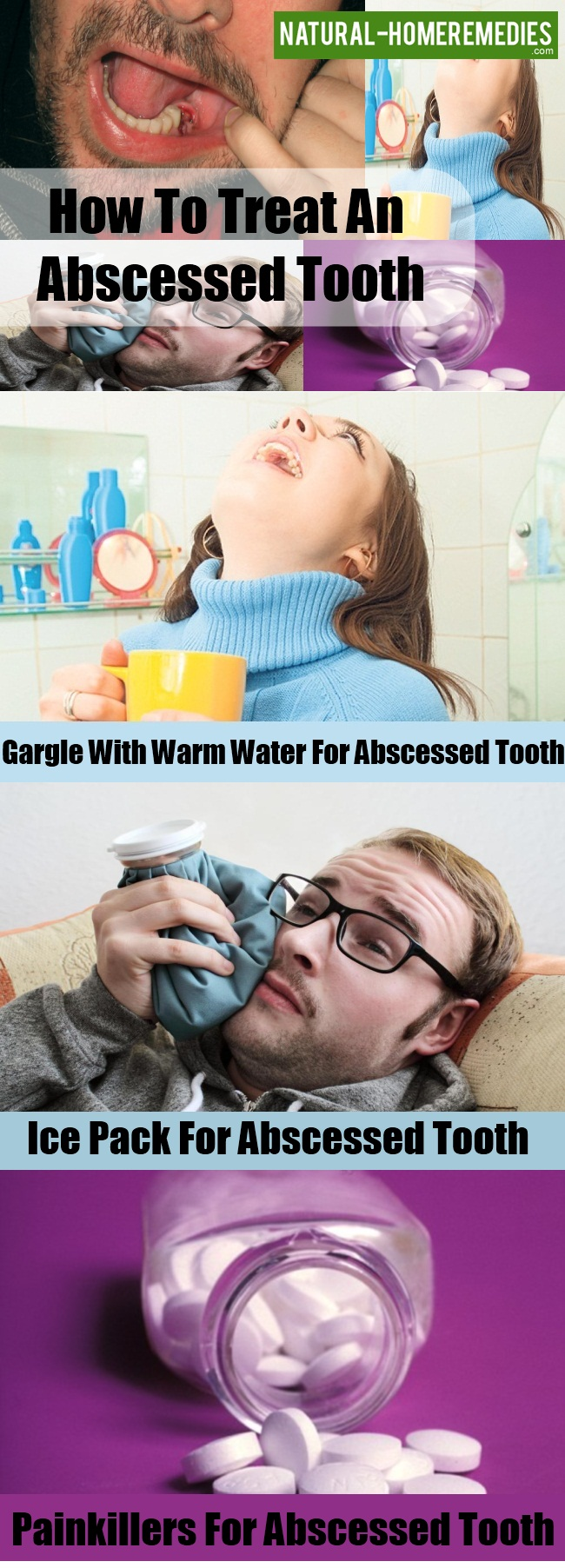 Treatments of Abscessed Tooth