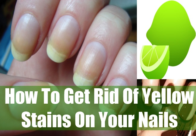 How To Remove Yellow Stains On Fingernails Get Rid Of What Causes Fingernail Discoloration Natural Home Remes