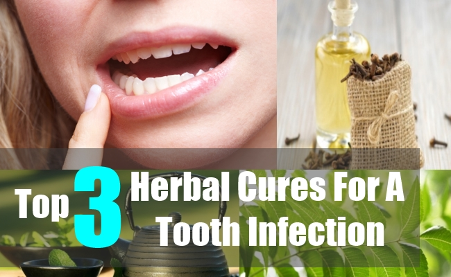 Top 3 Herbal Cures For A Tooth Infection
