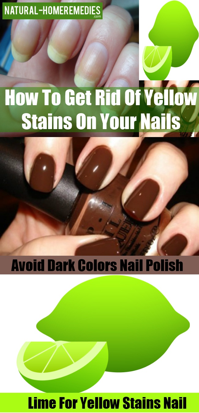 Yellow Stains On Your Nails