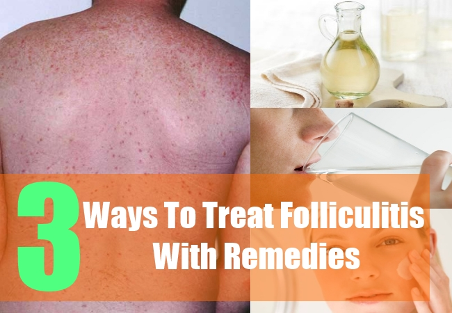 3 Ways To Treat Folliculitis With Remedies