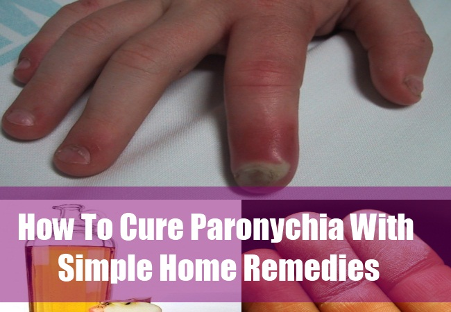 How To Cure Paronychia With Simple Home Remedies