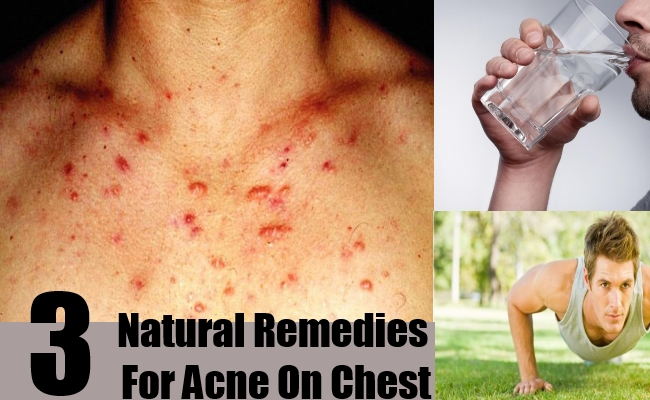 Natural Remedies For Acne On Chest