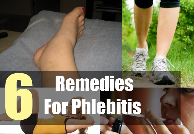 natural treatment for superficial thrombophlebitis