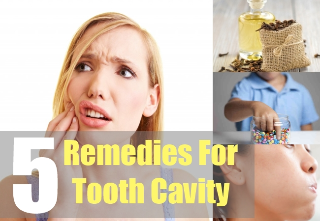 5 Remedies For Tooth Cavity