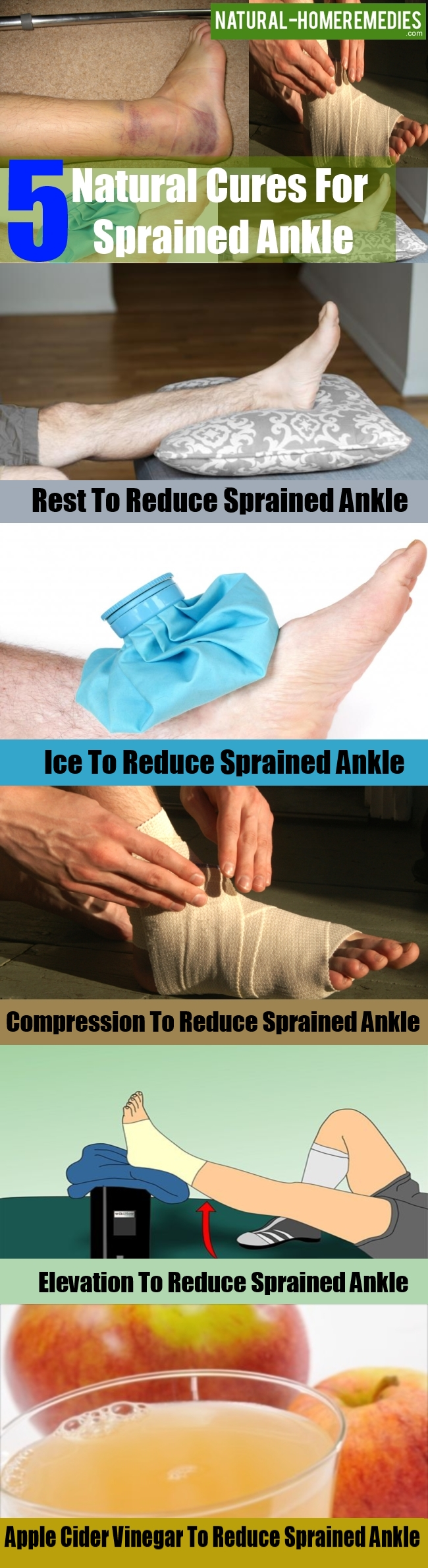 Natural Cures For Sprained Ankle