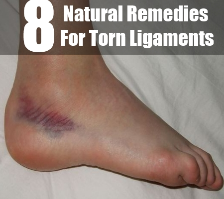 Natural Remedies For Torn Ligaments