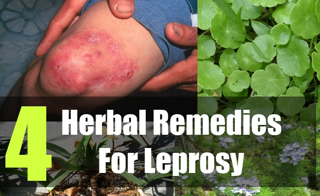 4 Herbal Remedies For Leprosy