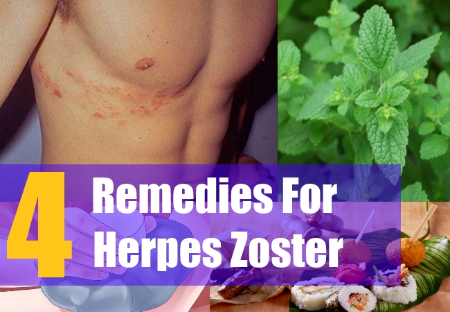 4 Remedies For Herpes Zoster