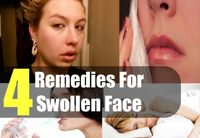 4 Home Remedies For Swollen Face