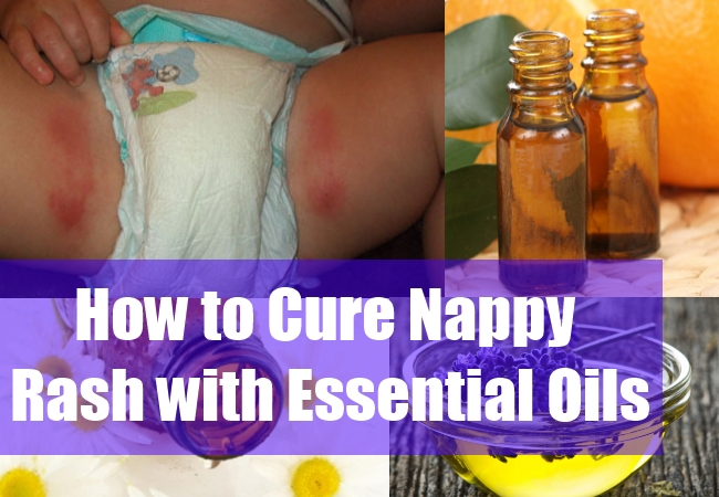How to Cure Nappy Rash with Essential Oils