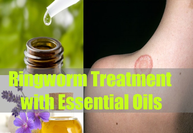 Ringworm Treatment with Essential Oils