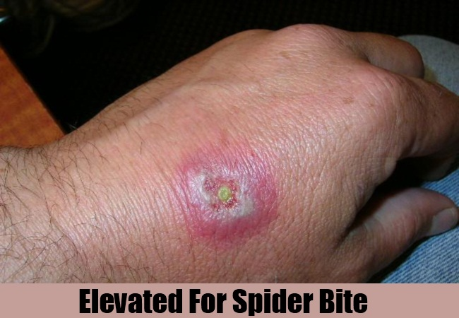 Elevated For Spider Bite