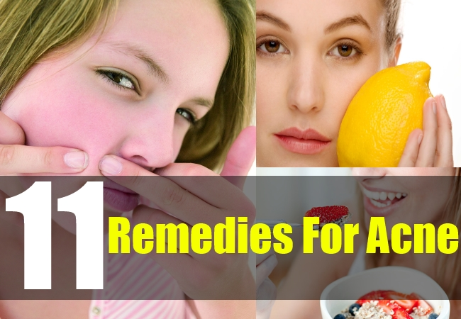 11 Remedies For Acne