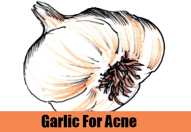 Garlic For Acne