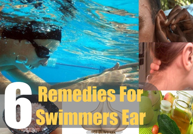 6 Remedies For Swimmers Ear