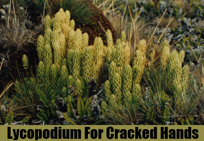 Lycopodium For Cracked Hands