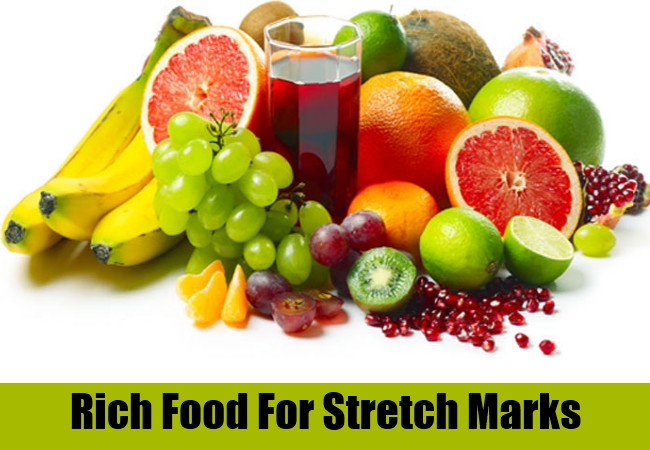 Rich Food For Stretch Marks