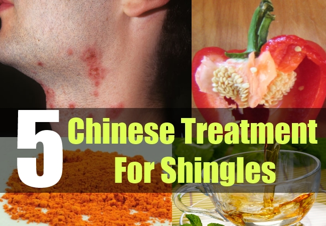 5 Chinese Treatment For Shingles How To Treat Shingles