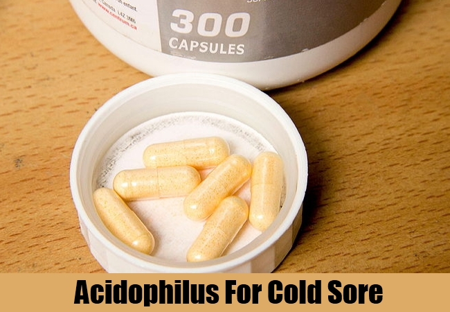 Acidophilus For Cold Sore