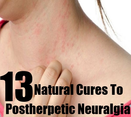 Cure To Postherpetic Neuralgia