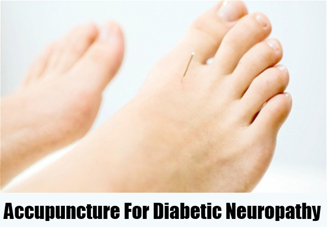 Accupuncture For Diabetic Neuropathy