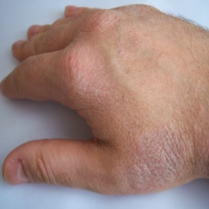 Guttate Psoriasis Causes And Symptoms