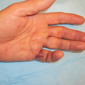 symptoms Of Dupuytren Contracture