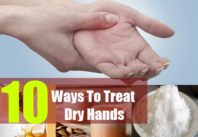 10 Ways To Treat Dry Hands