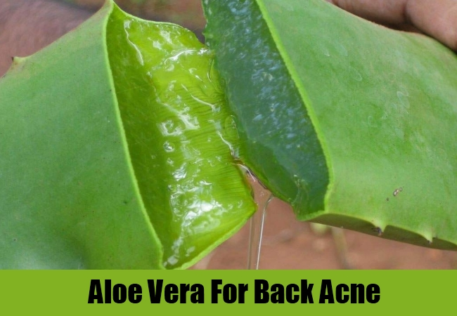 Aloe Vera Gel For Remove Calluses