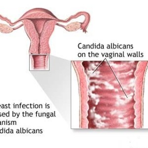 Top 10 Causes Of Female Yeast Infection