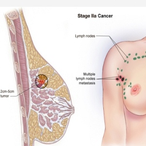 Four Stages Of Breast Cancer