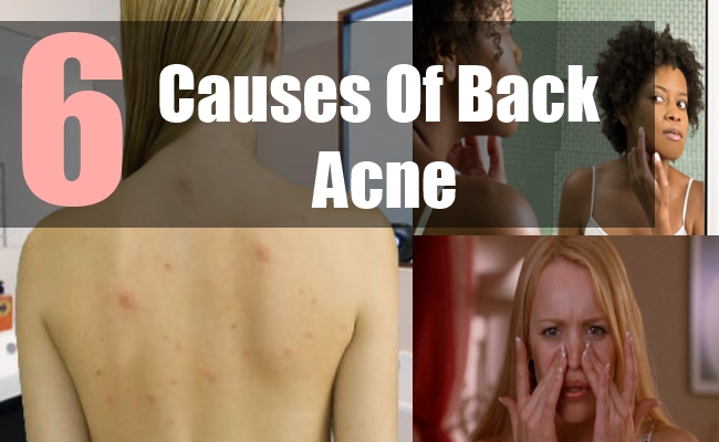 6 Causes Of Back Acne