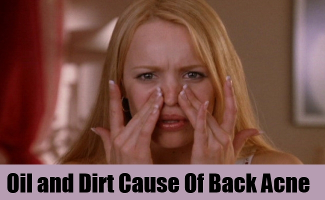 Oil and Dirt Cause Of Back Acne
