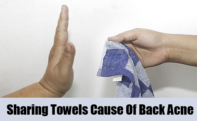 Sharing Towels Cause Of Back Acne