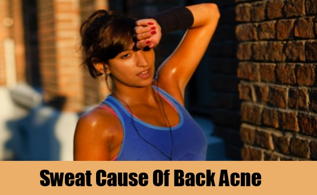 Sweat Cause Of Back Acne