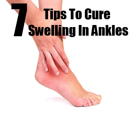 Swelling in Ankles