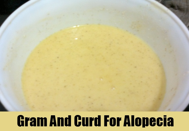 Gram And Curd For Alopecia