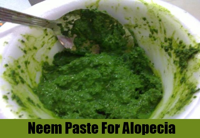 Home Remedies For Alopecia Natural Cure Amp Treatments For