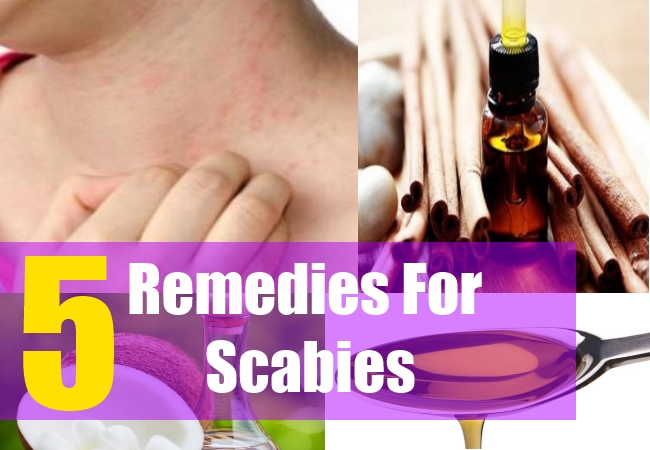 5 Remedies For Scabies