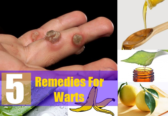 5 Remedies For Warts