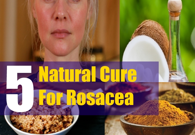 5 Natural Cure For Rosacea