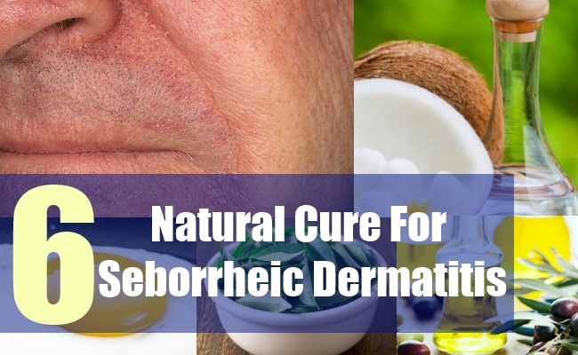 6 Natural Cure For Seborrheic Dermatitis