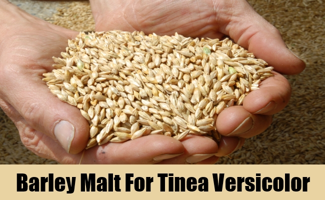 Barley Malt For Tinea Versicolor