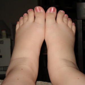 Pregnancy Induced Ankle Swelling