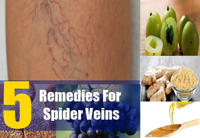5 Remedies For Spider Veins
