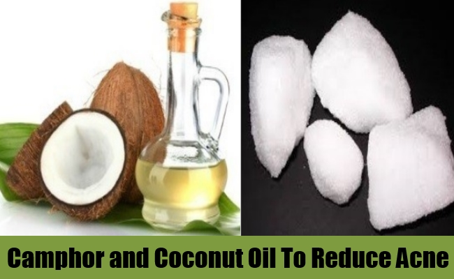 Camphor and Coconut Oil To Reduce Acne