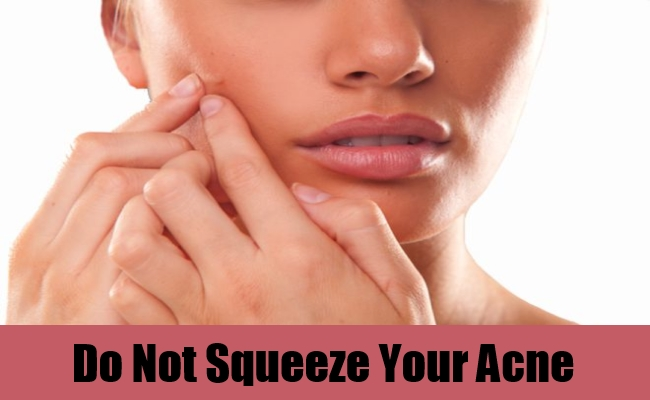 Do Not Squeeze Your Acne