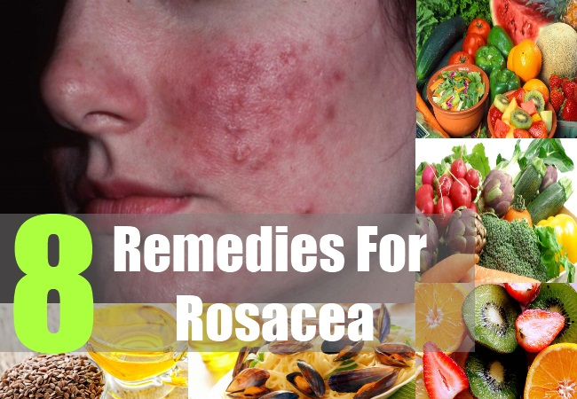 8 Remedies for Rosacea
