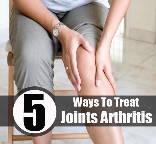 Joints Arthritis